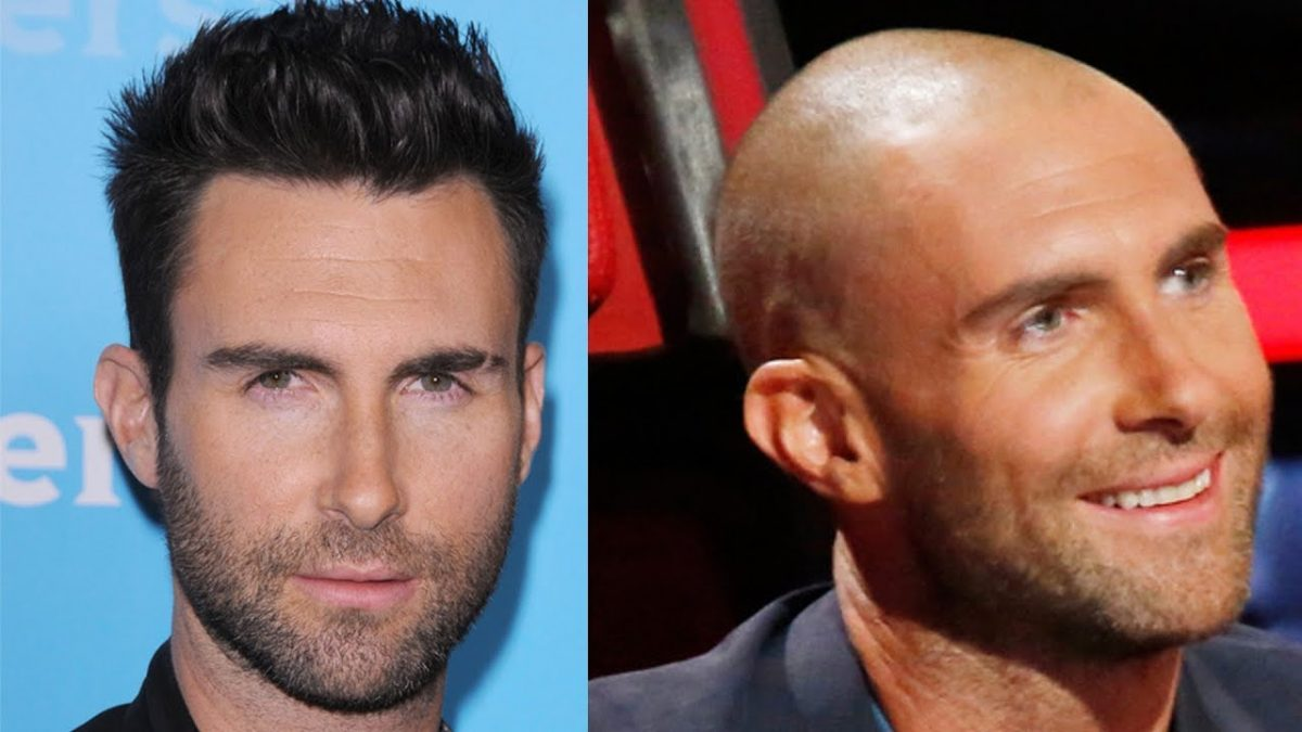 Celebrity Hair Loss Transplants in Hollywood California